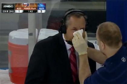 Комментатору матча НХЛ шайбой разбило нос