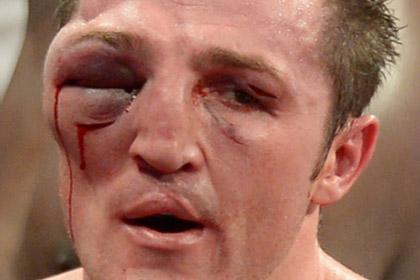 Врачу боя Лебедева с Джонсом запретили останавливать поединок