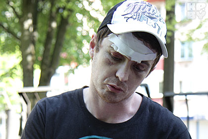 Белорус отсудил 30 миллионов за разбитую шайбой голову