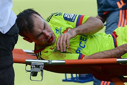 Получившего травму головы футболиста ЦСКА оставили в больнице