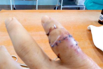 Вратарю сборной России по гандболу удалили фалангу пальца